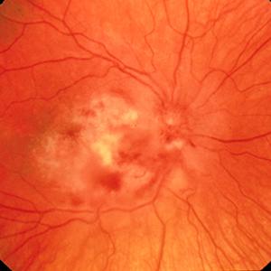 Inflammation (Retinitis, Vitritis)